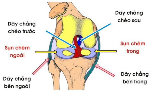 Nên làm gì khi bị gãy xương mâm chày kèm tổn thương dây chằng chéo trước?