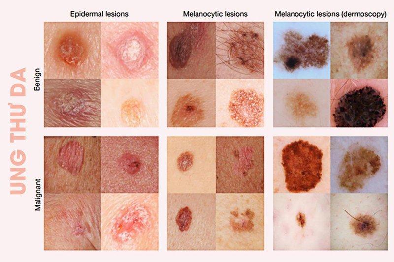 Nên làm gì khi hạch tái phát sau khi điều trị ung thư da?