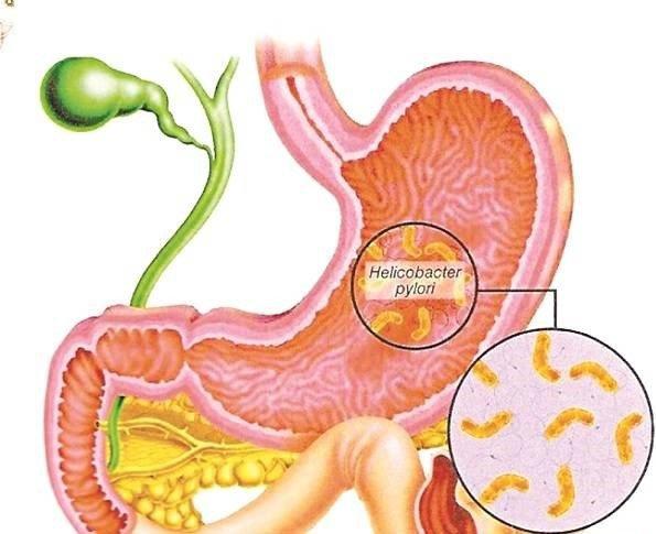 Ngứa, tiểu gắt sau uống thuốc trị viêm dạ dày và IBS có sao không?