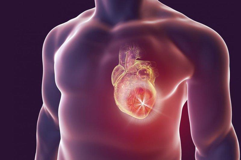 Nhiễm trùng tim