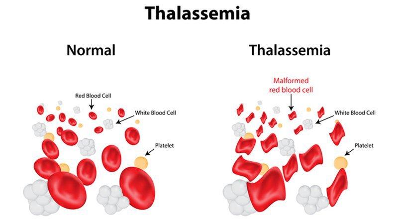 Thalassemia thể nhẹ có thể điều trị được không?