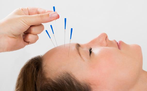 Châm cứu chữa đau đầu