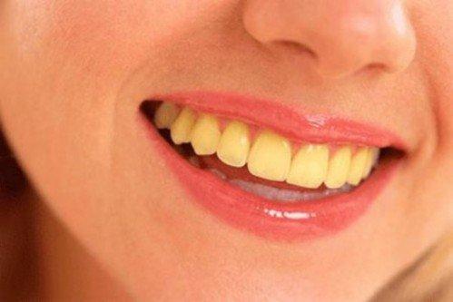 nguyên nhân khiến răng bị ố vàng