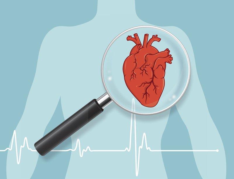 Chạy bộ tại chỗ tốt cho tim mạch của người tập luyện