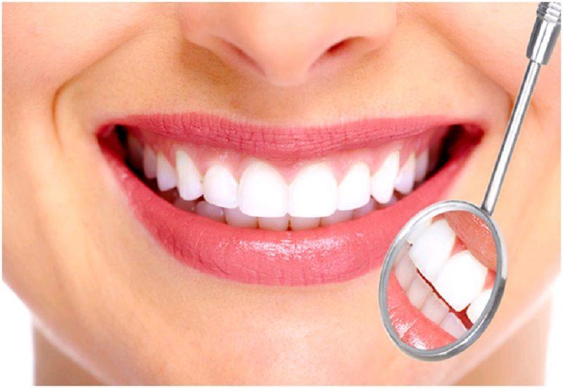 bọc răng sứ giữ được bao lâu
