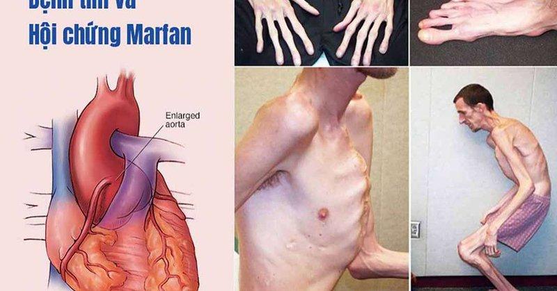 tổn thương tim do hội chứng Marfan