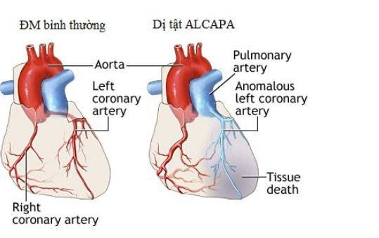 hội chứng ALCAPA