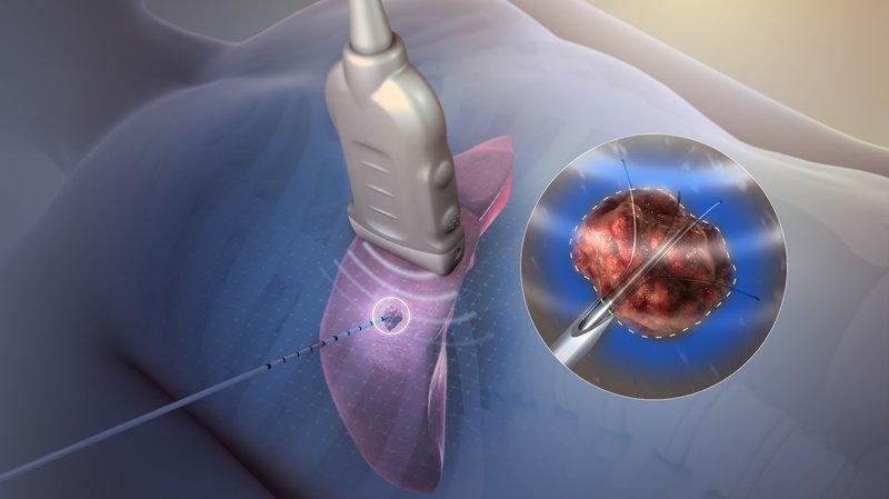 U nguyên bào gan có thể điều trị bằng đốt sóng cao tần không?