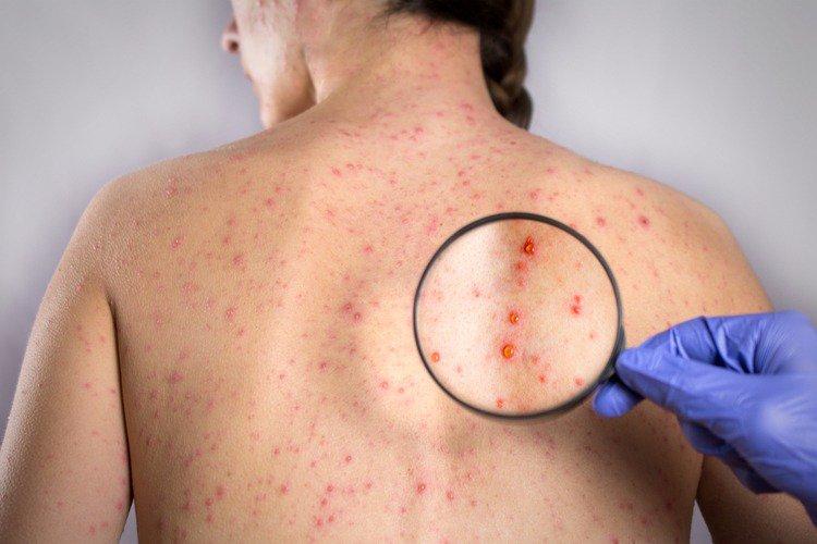 Khi nhiễm Rubella có thể điều trị như thế nào?