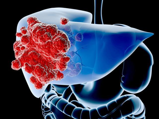 Ung thư gan giai đoạn đầu có chữa trị được không?