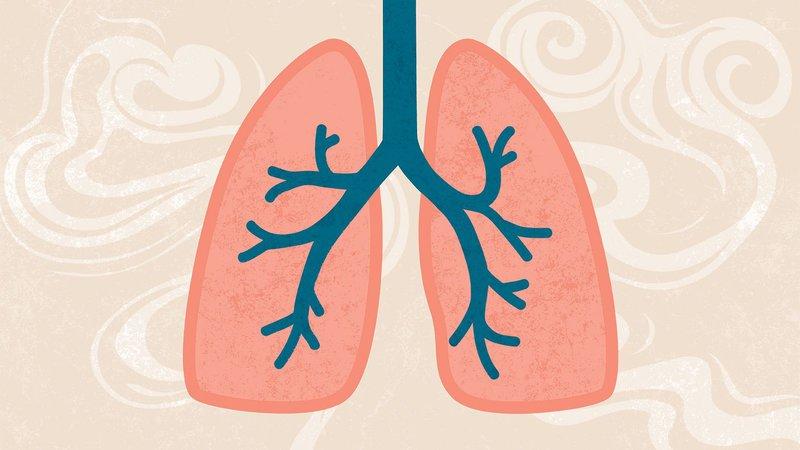 Thực đơn cho bệnh nhân COPD