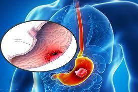 ung thư dạ dày giai đoạn đầu