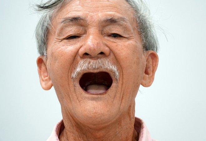 Đau răng, rụng răng ở người cao tuổi