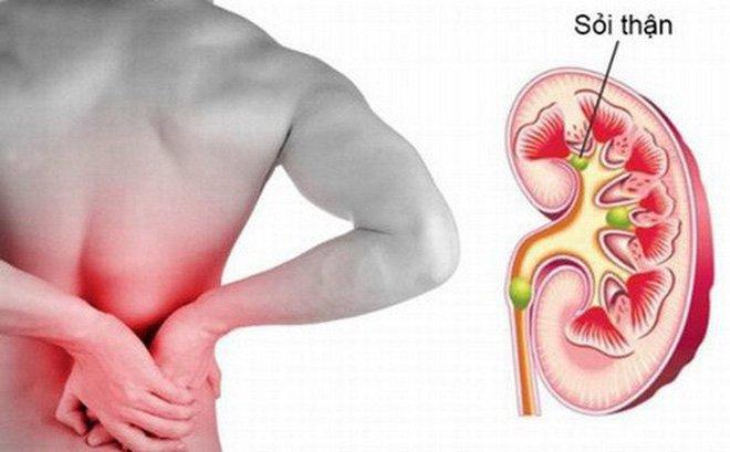 Phương pháp điều trị sỏi thận an toàn nhất?