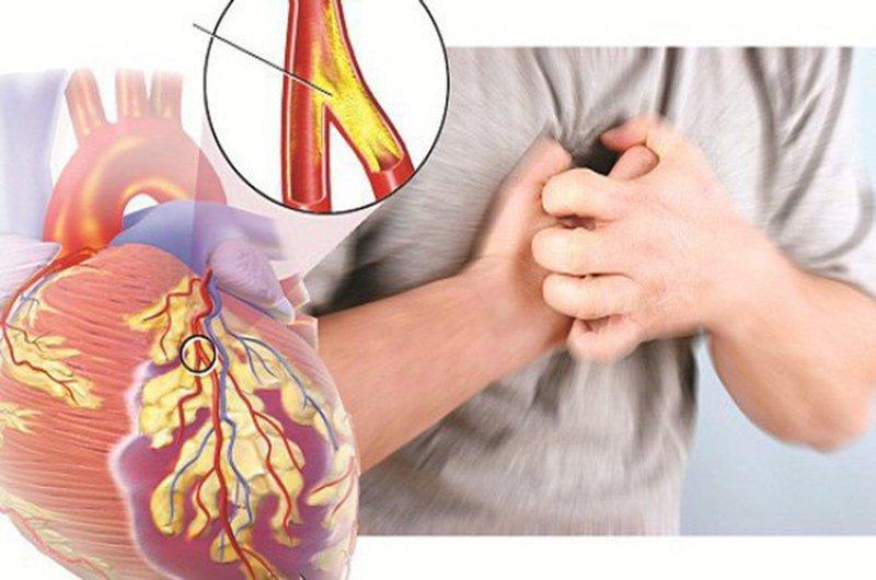 hội chứng mạch vành cấp
