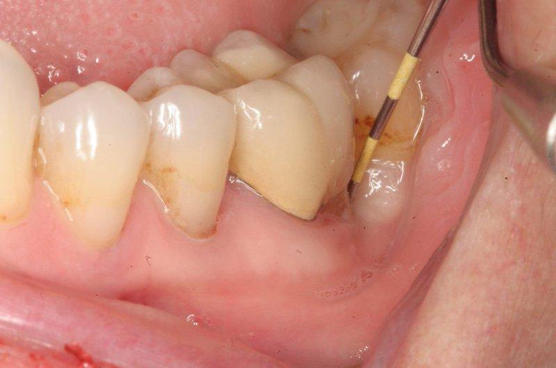 Tiêu quanh răng