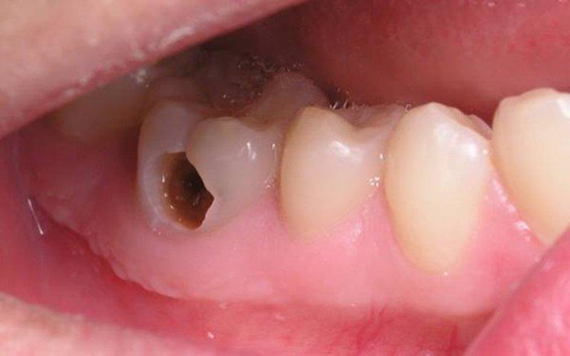 răng bị thủng lỗ
