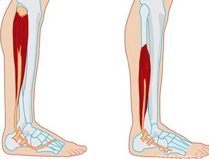 Teo cơ chân