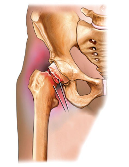Mổ cổ xương đùi bao lâu thì liền xương?