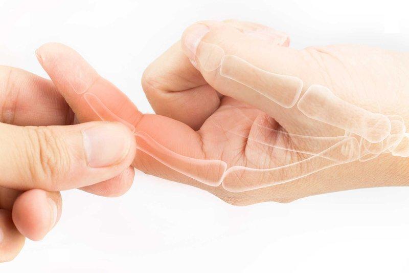 Đau khớp ngón tay là triệu chứng của bệnh gì?