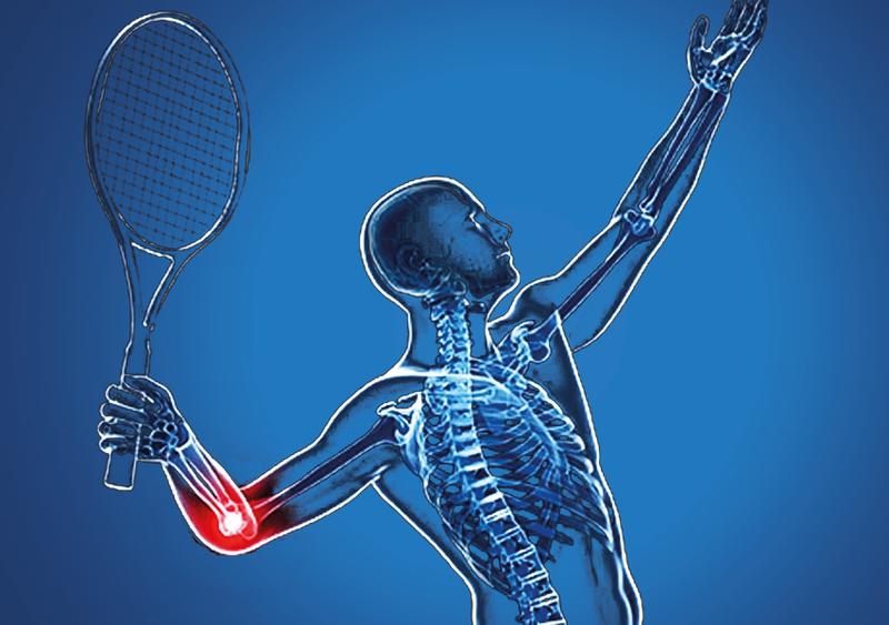 Điều trị hội chứng khuỷu tay tennis như thế nào?