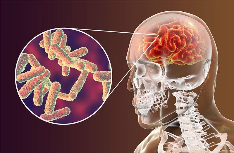 Lao màng não có lây và có dễ tái phát không?