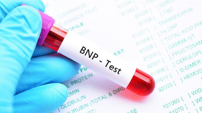 xét nghiệm nt-probnp