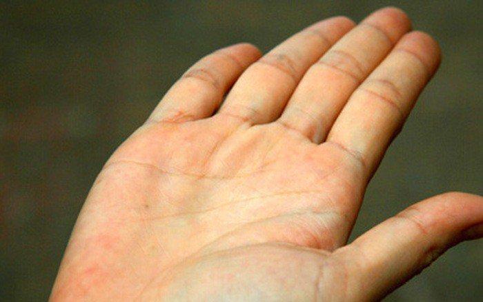 Vàng da, gầy kèm hoa mắt là dấu hiệu bệnh gì?