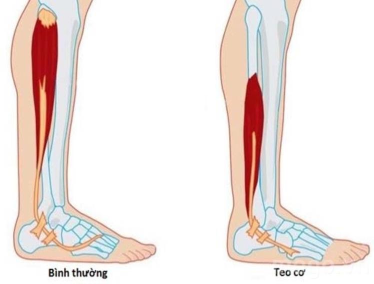Bị teo cơ chân do bại liệt có phục hồi được không?