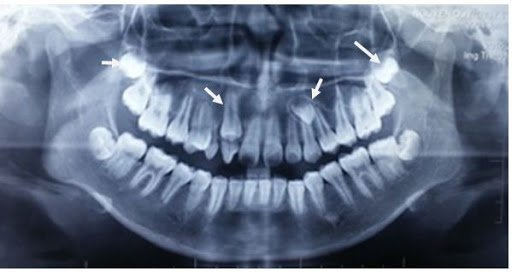 Răng mọc ngầm
