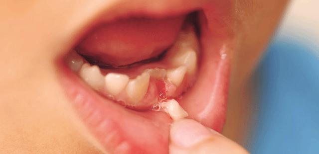 Răng sữa mọc lệch