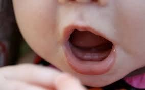 Trẻ 6 tháng tuổi bị rụng răng có nguy hiểm không?