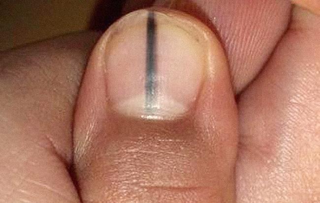 vết thâm đen ở móng tay