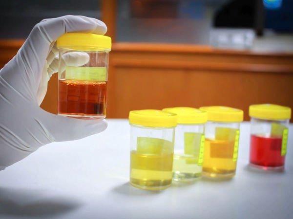 Nước tiểu màu vàng đậm, mùi tanh hôi là dấu hiệu bệnh lý gì?