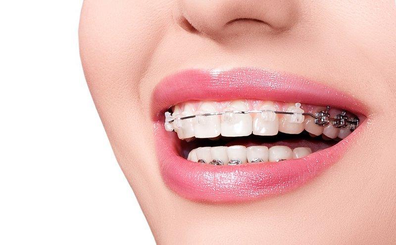 thời gian niềng răng tối thiểu