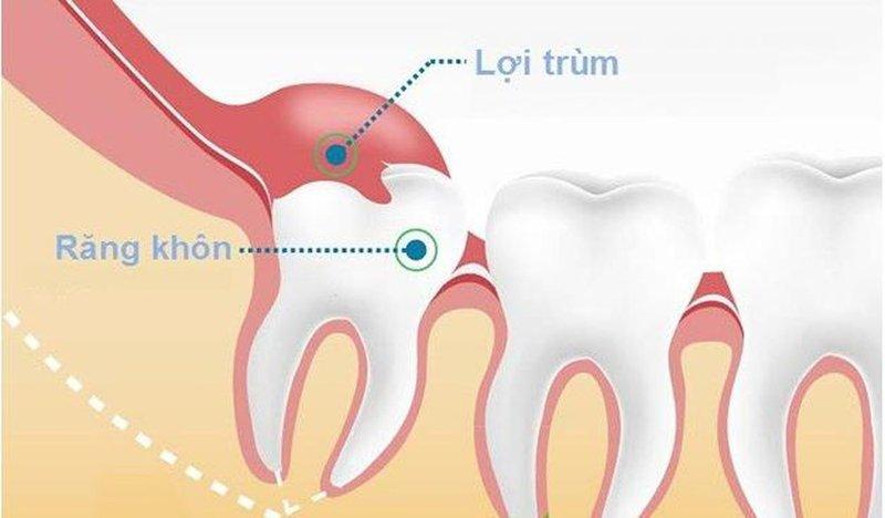 lợi trùm lên răng khôn