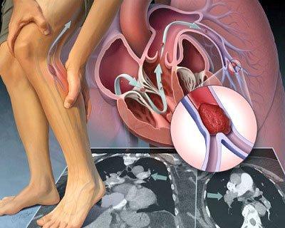 Bệnh động mạch chi dưới