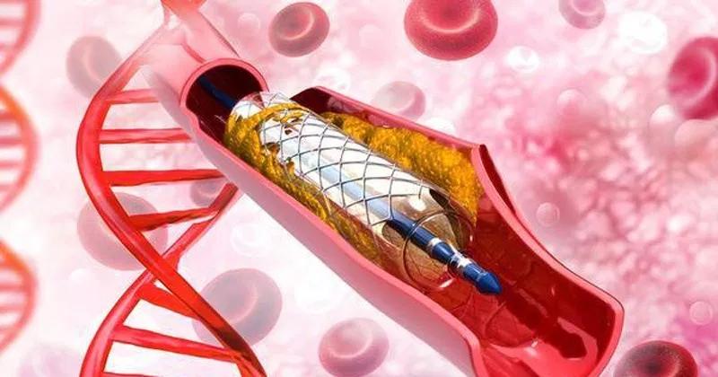 Đặt stent điều trị hẹp động mạch thận