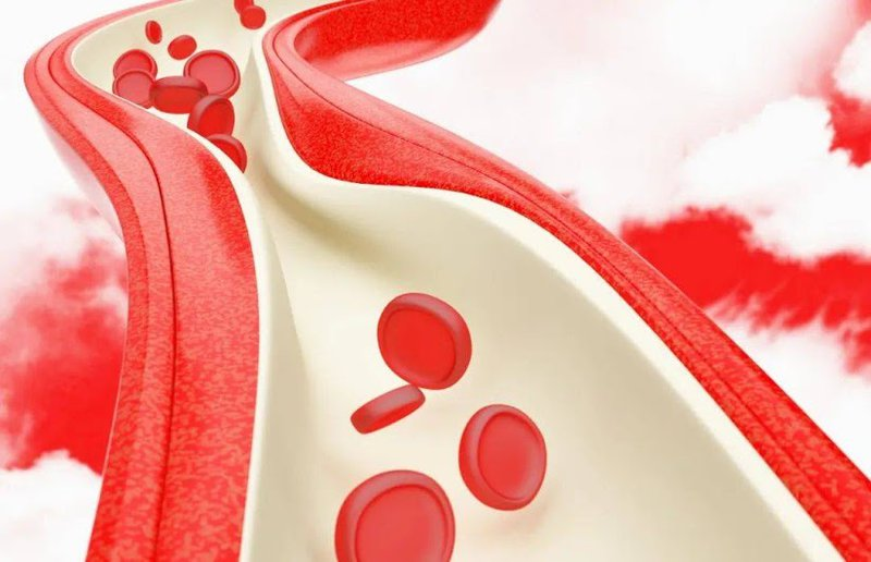 Một số nguyên nhân dẫn đến xuất huyết mạch máu