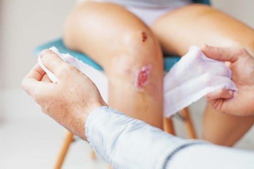 Bị vết thương hở ngoài da, vì sao cần tiêm uốn ván?
