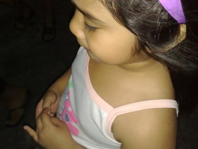 Vú phát triển ở bé gái 5 tuổi có phải biểu hiện của dậy thì sớm không?