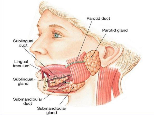 Lấy sỏi ống tuyến stenon đường miệng