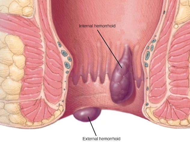 Nội soi hậu môn ống cứng can thiệp tiêm xơ búi trĩ