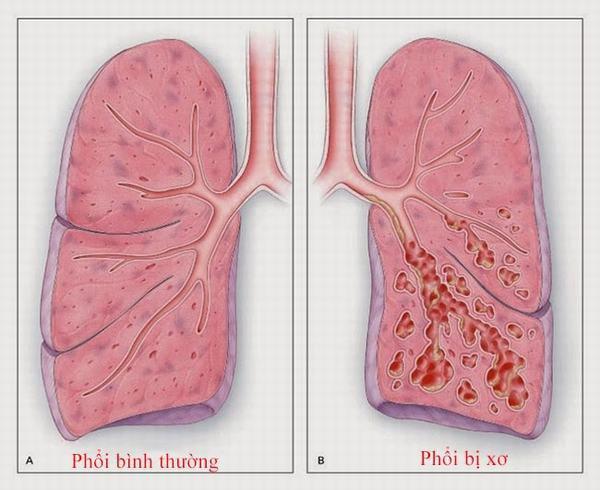 Xơ phổi do bệnh phổi cũ có nguy hiểm không?