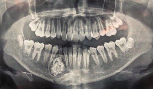 u răng phức hợp