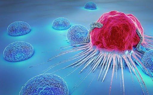 Dấu hiệu ung thư sớm