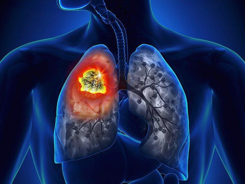 Các loại ung thư di căn đến phổi