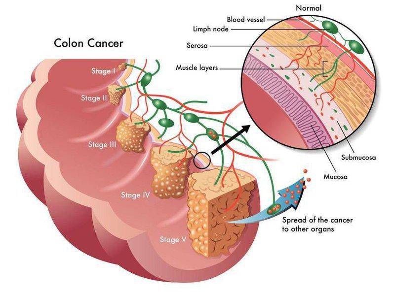 Điều trị ung thư đại tràng giai đoạn 2