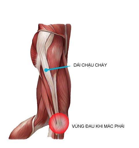 hoi-chung-dai-chau-chay-iliotibial-band-syndrome-itbs-3