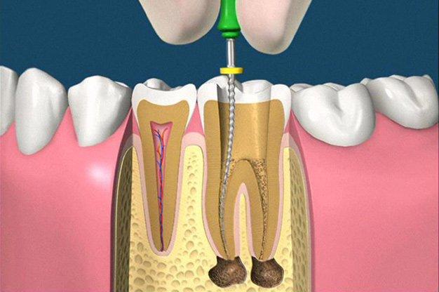 Lấy tủy răng không đau cho răng sâu